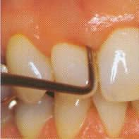 parodontose5