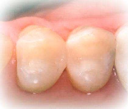 Plastfyldninger er en af vores mange tandbehandlinger