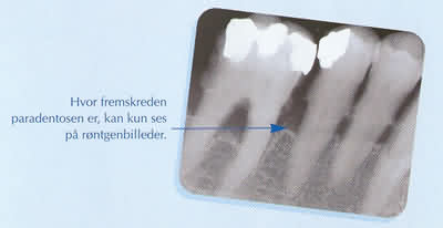 parodontose4