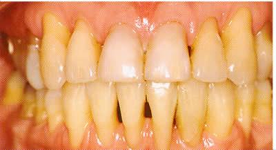 parodontose7
