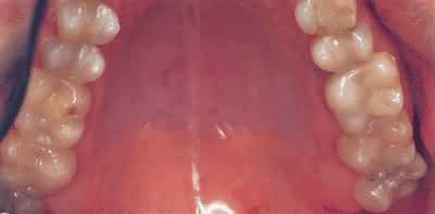 porcelnsindlg-efter