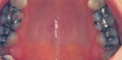 porcelnsindlg-fr